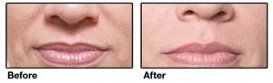 Restylane Lips Before and After Houston TX | Dr Esta Kronberg