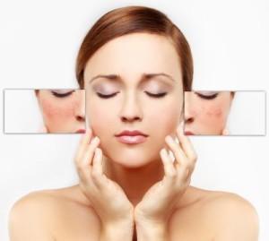 Omnilux Skin Rejuvenation