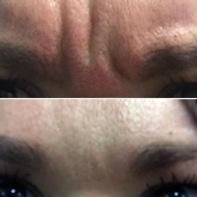 Botox Before & After Photo - Houston TX - Dr. Esta Kronberg